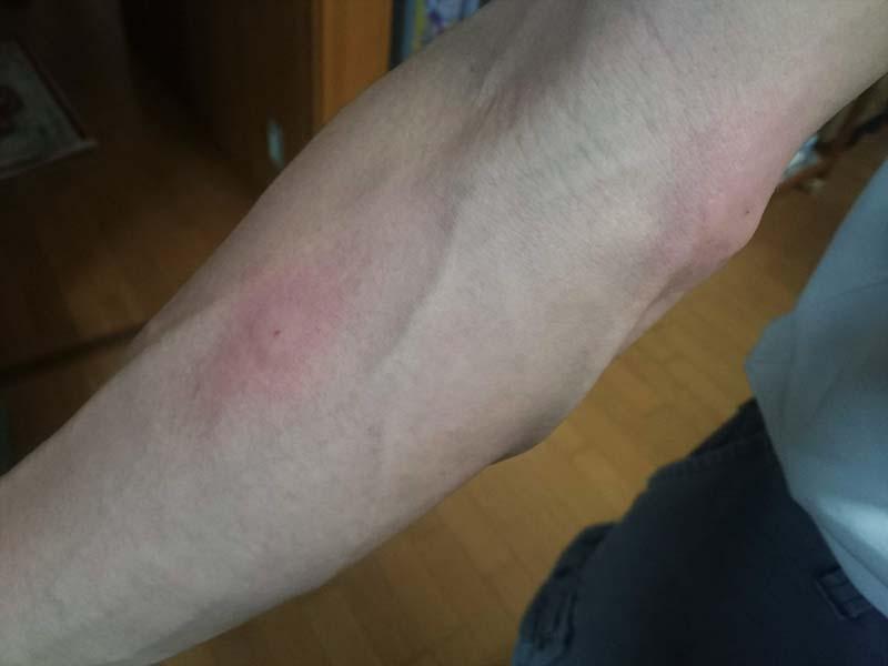 に 腫れる る 蚊 刺され